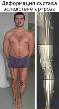 лечение артроза коленного сустава цена Молодец! Креатифф тему