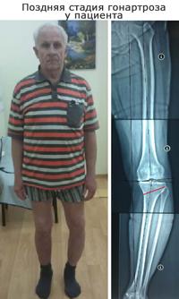 Артроз коленного сустава лечение цена