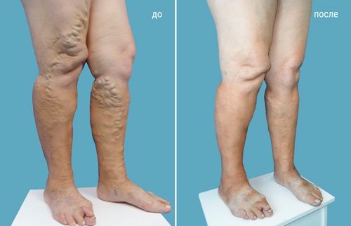 Варикоз вен на ногах насколько эффективно лечение народными средствами